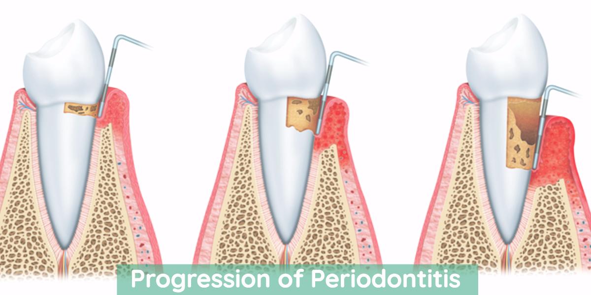 Diagram of periodontal disease
