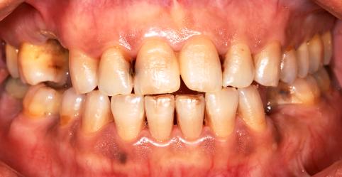 Gum Disease Due To Smoking