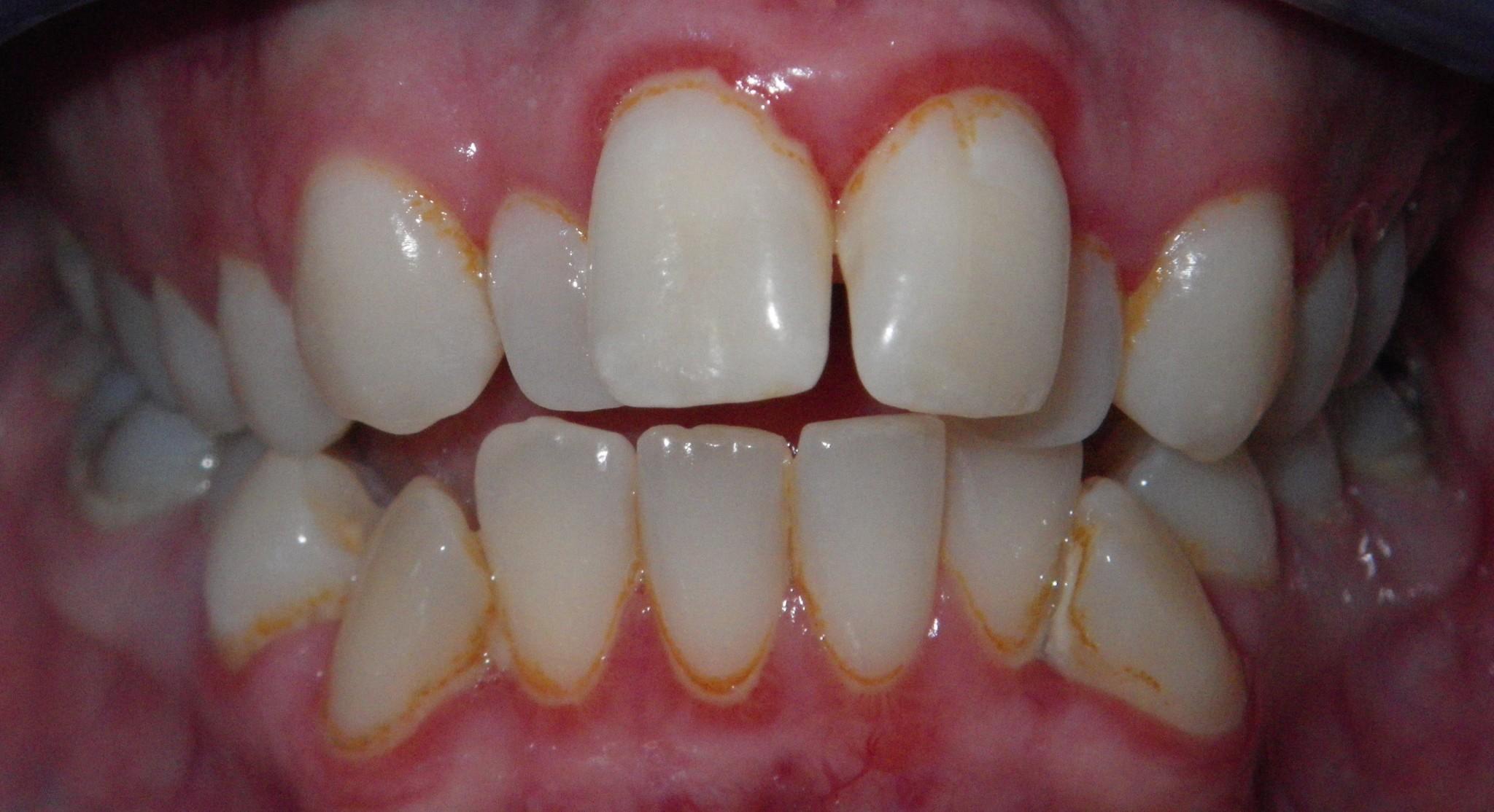 Gum Disease The Silent Criminal La Dental Clinic