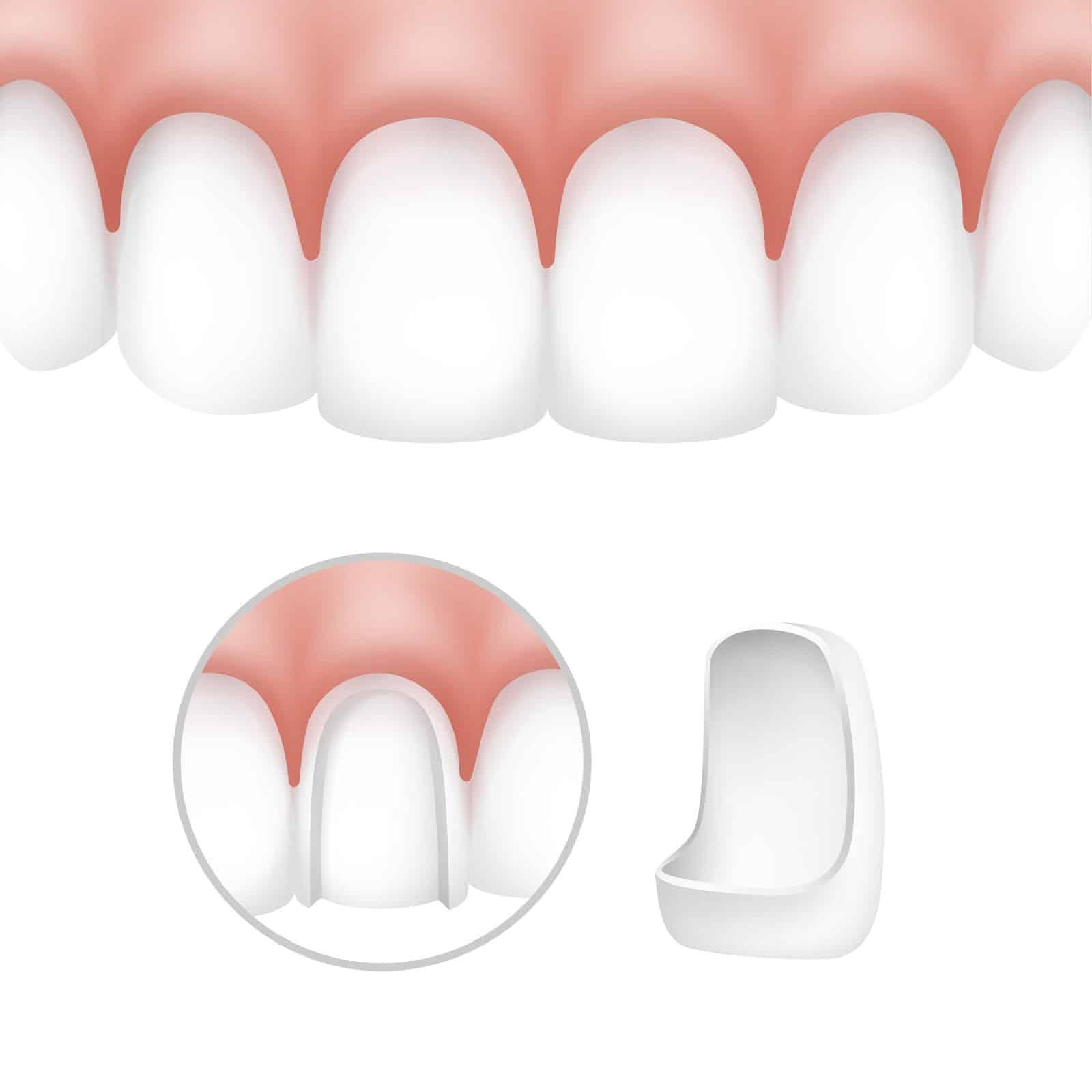 diagram of dental veneers