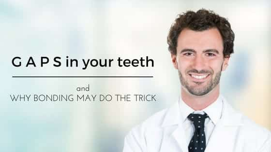 Gaps in Your Teeth and Why Bonding May Do the Trick