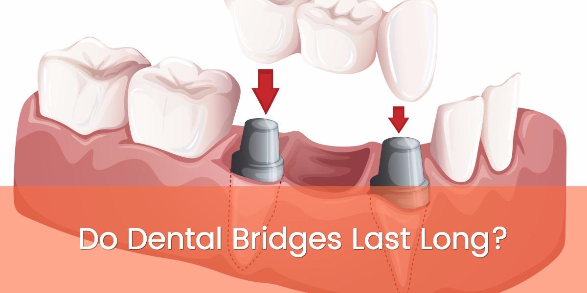 Do Dental Bridges Last Long